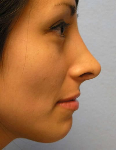 Dr. Lindsey speaking with Rhinoplasty patient in Washington DC after nasal surgery