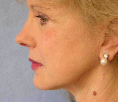 Short scar facelift before and 5 months later patient interview with Dr. Lindsey