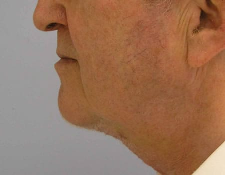 Excision of Turkey neck deformity by Dr. Lindsey