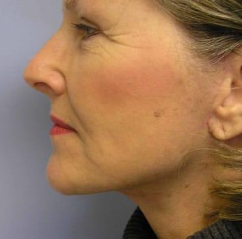 Revision short scar facelift by Dr. Lindsey