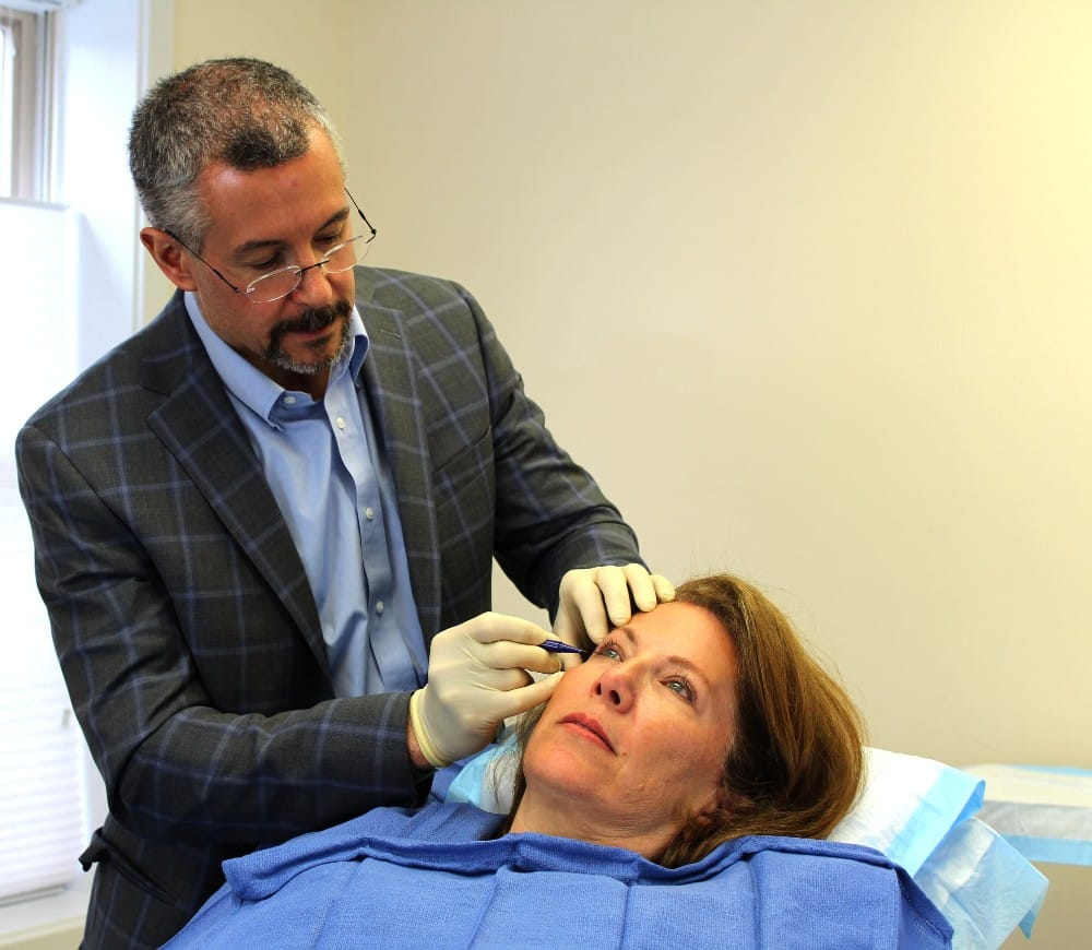 Susan's short scar facelift in Washington DC with Dr. Lindsey
